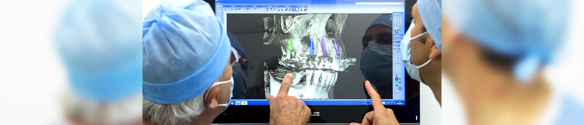 Analyse en équipe des cas implantaires