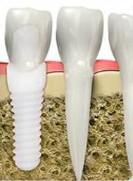 Schéma d'un implant dentaire en Zircone