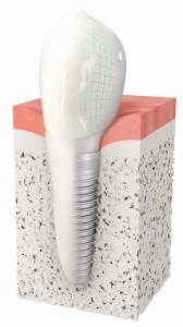 Implant dentaire à Marseille au CIPE de Marseille